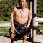 Kashin-Beckova choroba – příznaky, příčiny a léčba