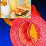 10 zajímavostí a překvapujících faktů o cholesterolu