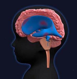 Co je hydrocefalus (nahromadění mozkomíšního moku) - příznaky, příčiny a léčba