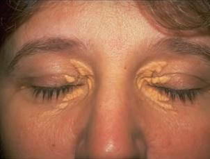 Xantelazma neboli tukové usazeniny v okolí očí - jak na ně?