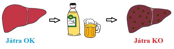 Alkoholická hepatitida může zničit vaše játra.