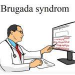 Brugada syndrom – co je to? Příznaky, příčiny a léčba