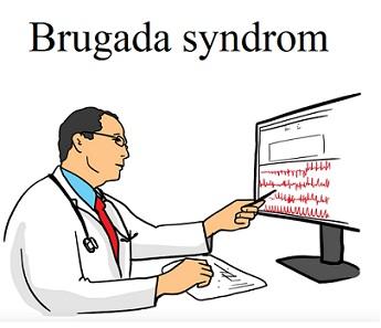 Čtení EKG křivky je jednou z možností diagnostiky Brugada syndromu.