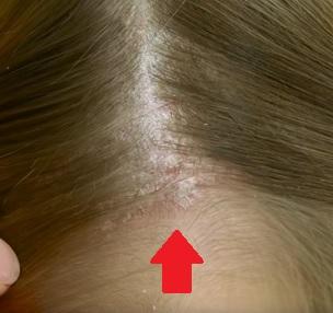 Jak na psoriázu na hlavě? Pár tipů na léčbu tohoto problému pro vás máme.