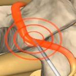 Co je to radiofrekvenční ablace (RFA) – uleví od jakékoliv bolesti, pomůže při nádorech