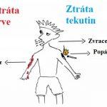 Hypovolemický šok – co je to – příznaky, příčiny a první pomoc