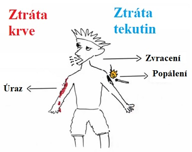 Hypovolemický šok - co je to - příznaky, příčiny a první pomoc