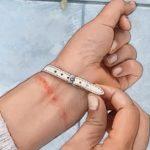 Kontaktní dermatitida – jak na ni? Příznaky, příčiny a léčba