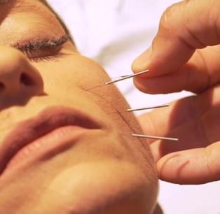 Jaké účinky může mít obličejová akupunktura?