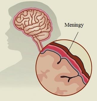 Meningitida postihuje meningy, membrány, které obklopují mozek a míchu.