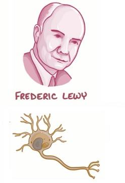 Demence s Lewyho tělísky - co to je - příčiny, příznaky a léčba