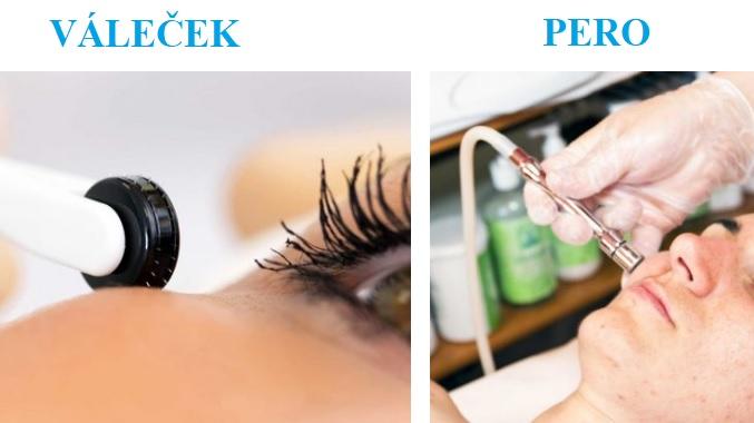 Mikrojehličkování se může provádět buď mikrojehličkovým perem nebo dermatologickým válečkem