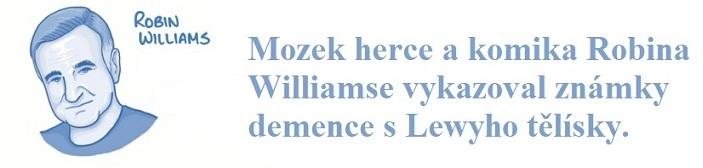 Mozek herce a komika Robina Williamse vykazoval známky demence s Lewyho tělísky.
