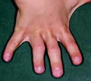 Končetiny bývají krátké, stejně tak bývají i krátké prsty.