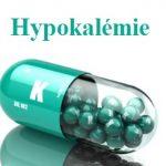 Hypokalémie – toto je 8 příznaků toho, že máte v těle málo draslíku