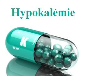 Hypokalémie - toto je 8 příznaků toho, že máte v těle málo draslíku