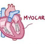 Myokarditida – zánět srdečního svalu – příznaky, příčiny a léčba