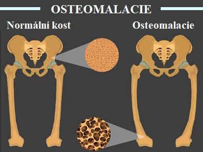 Osteomalacie znamená měkké kosti.