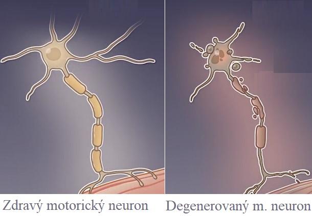 Spinální svalová atrofie (SMA) je závažné neurodegenerativní onemocnění charakterizované degenerací motorických neuronů v předních rozích míchy.