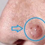 Bazocelulární karcinom (karcinom bazálních buněk) – co je to – příznaky, příčiny a léčba