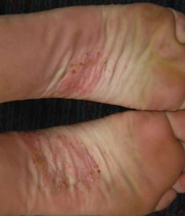 Dyshidrotický ekzém na nohách