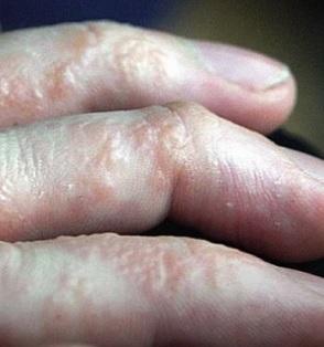 Takto může vypadat dyshidrotický ekzém na rukou.
