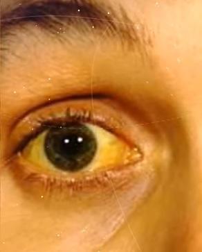 Žloutnutí kůže a bělma očí jsou jedním z příznaků toxické hepatitidy.