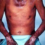Nemoc pelagra (nedostatek vitamínu B3) – co je to? – příznaky, příčiny a léčba