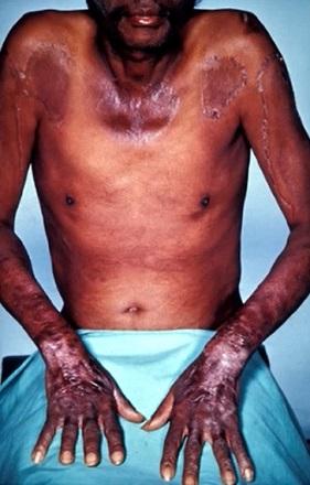 Nemoc pelagra (nedostatek vitamínu B3) - co je to? - příznaky, příčiny a léčba