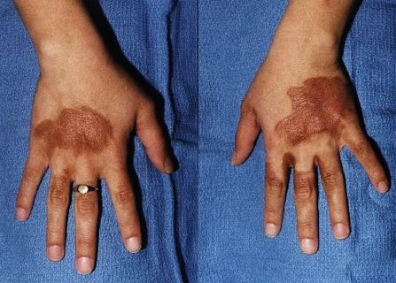 V extrémním případě může vystavení esenciálního oleje na pokožce vyústit ve změnu pigmentace či popálení pokožky