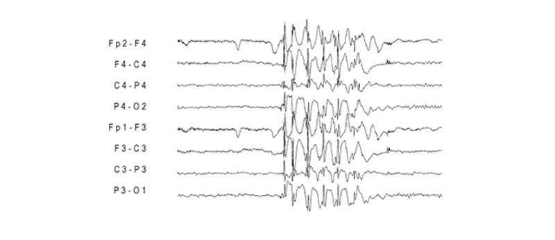 Zaznamenaná mozková aktivita pacienta s fotosenzitivní epilepsií.