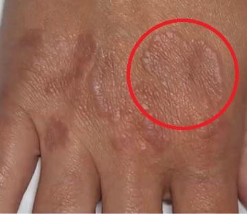 Granuloma annulare - takto může vypadat.