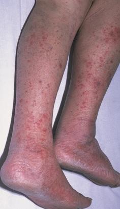 Červené či fialové kožní vyrážky se vyskytují přibližně u poloviny všech jedinců s meningokokovou meningitidou.