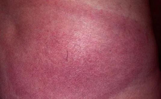 I takto může vypadat erythema migrans