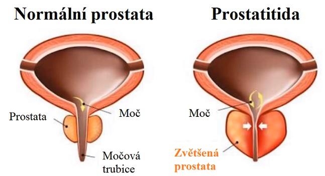 Zdravá prostata vs. prostatitida