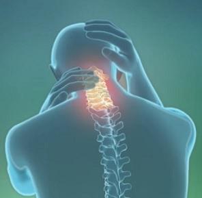 Cervikální spondylóza je degenerativní onemocnění krční páteře.