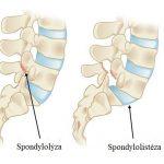 Spondylolistéza – co je to – příznaky, příčiny a léčba – cviky, které pomáhají
