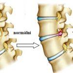 Cviky a protahování na vyhřezlou plotýnku v oblasti krku (při cervikální radikulopatii)