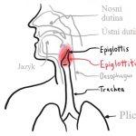 Zánět hrtanové příklopky – epiglotitida – příznaky, příčiny a léčba