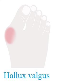 Takto nějak vypadá hallux valgus na palci u nohy