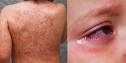 Vyrážka na trupu a krví podlité oči jsou příznaky Kawasakiho choroby