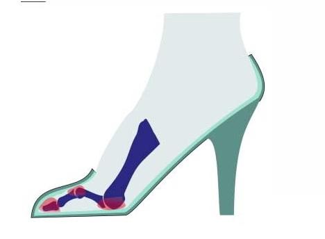 Splayfoot, a tedy hallux valgus, je často způsoben tím, že nosí boty na vysokých podpatcích. Vysoké podpatky posouvají celou tělesnou hmotnost na přední část chodidla a zvyšují tlak na metatarsofalangeální klouby.