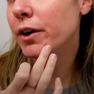 Jak na akné z nošení roušky?