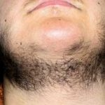 Achardův-Thiersův syndrom – příznaky, příčiny a léčba