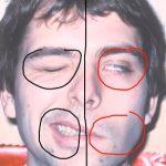Bellova obrna – dočasná slabost nebo ochrnutí svalů v obličeji – příznaky, příčiny a léčba