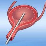 Biopsie močového měchýře – kdy, proč a jak se dělá?
