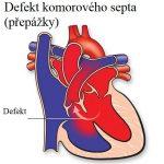 Defekt (síňového) komorového septa (přepážky) – příznaky, příčiny a léčba