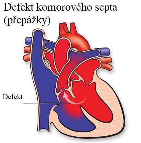 Defekt komorového septa