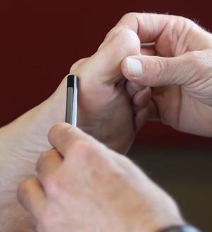 Hallux rigidus - ztuhlý palec - příznaky, příčiny a léčba