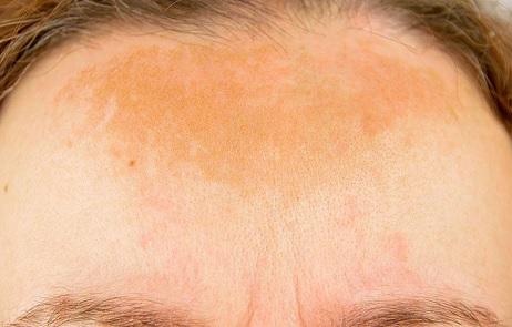 Takto může vypadat hyperpigmentace na čele